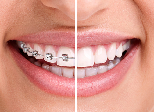 Brisbane orthodontic Services