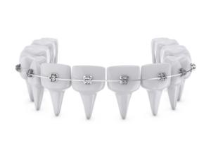 Dental Implants Brisbane